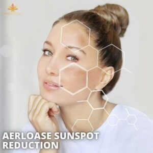 Say Goodbye to Sunspots with Aerolase