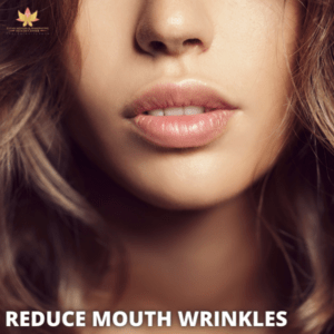 reduce mouth wrinkles