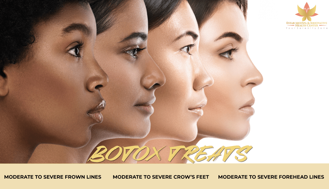 Botox in Olney Maryland
