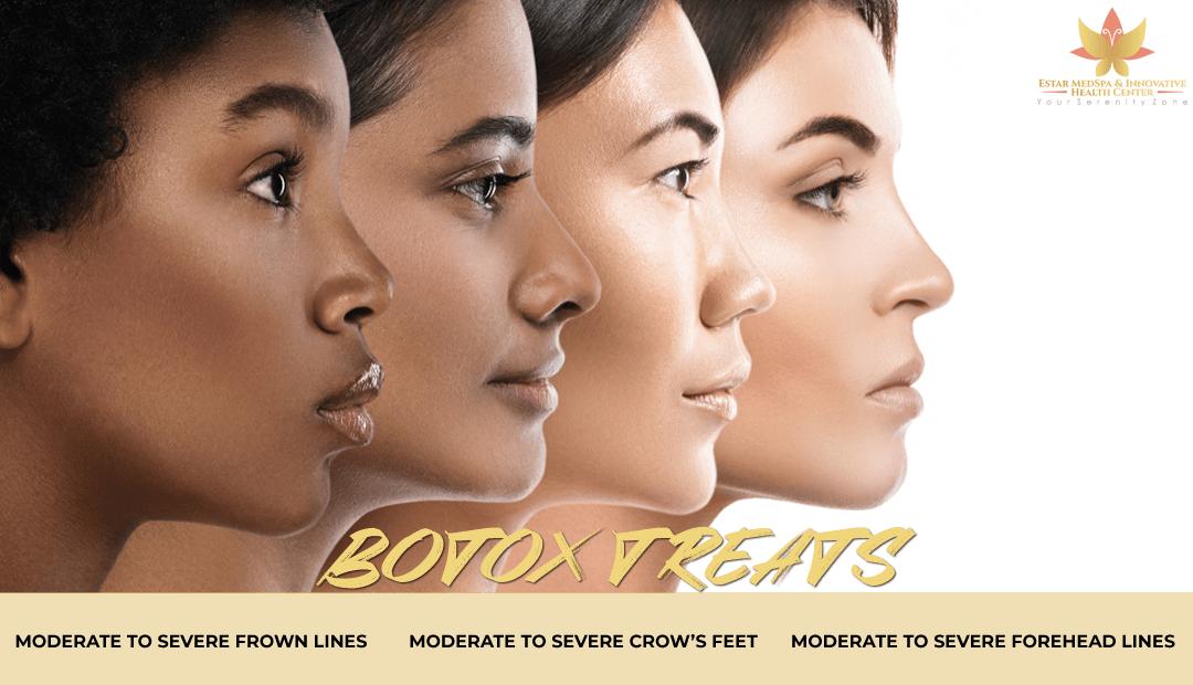 Botox in Olney Maryland