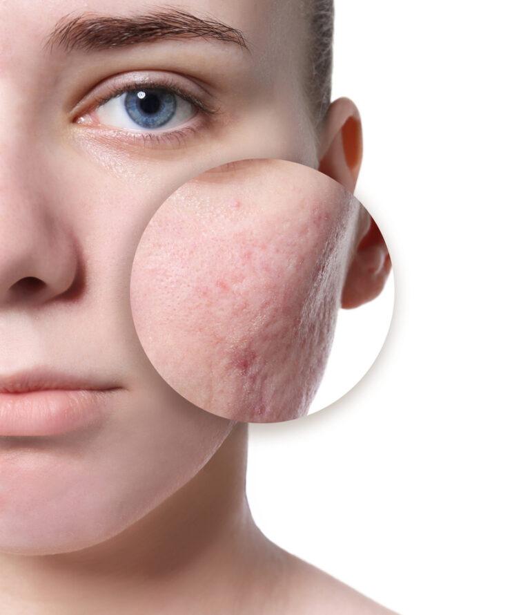 Acne Scars Treatment Olney MD