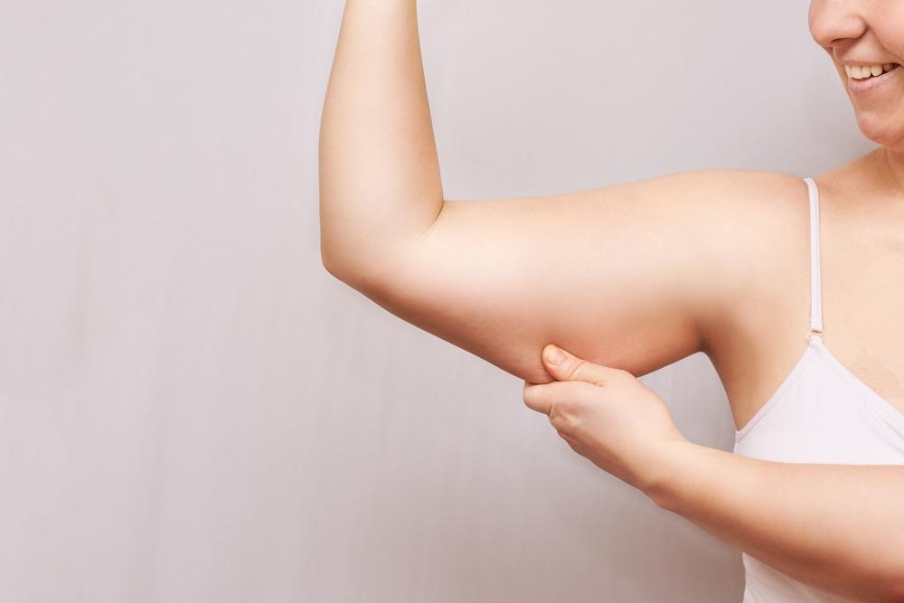 Tumescent Liposuction Potomac Maryland