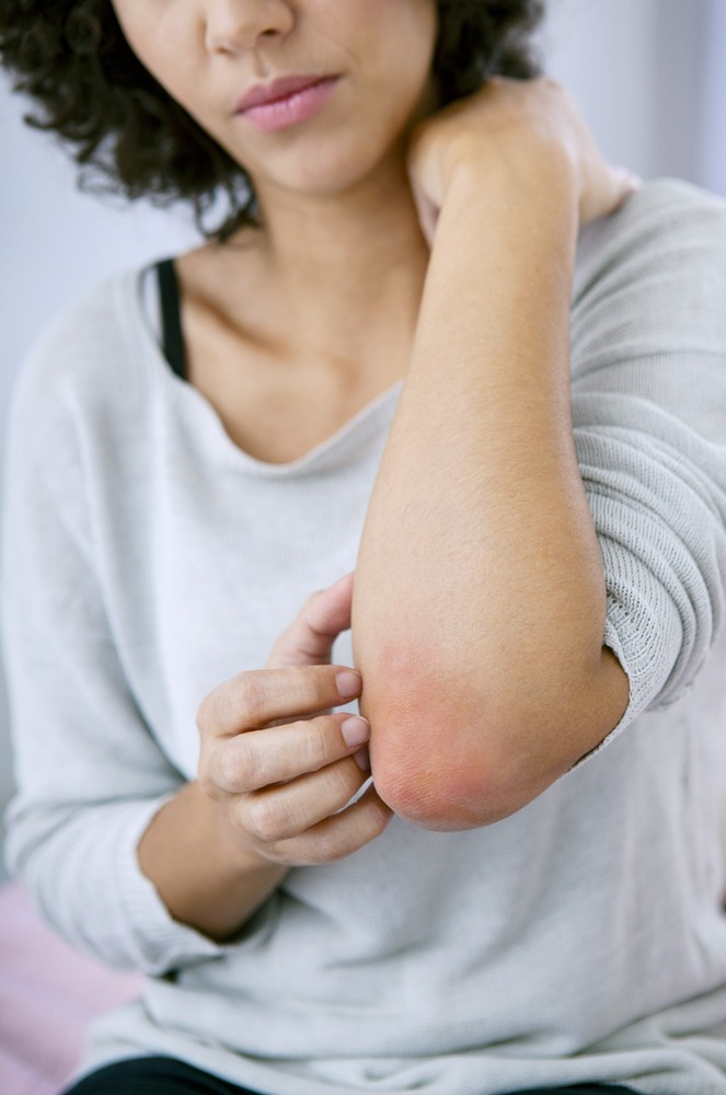 Psoriasis in Olney, MD