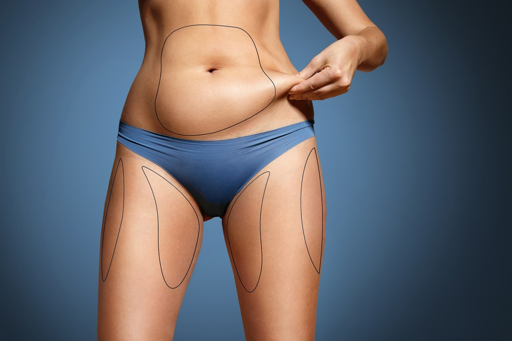 Liposuction Maryland