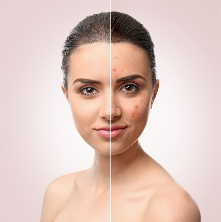 Acne Treatment Olney Maryland